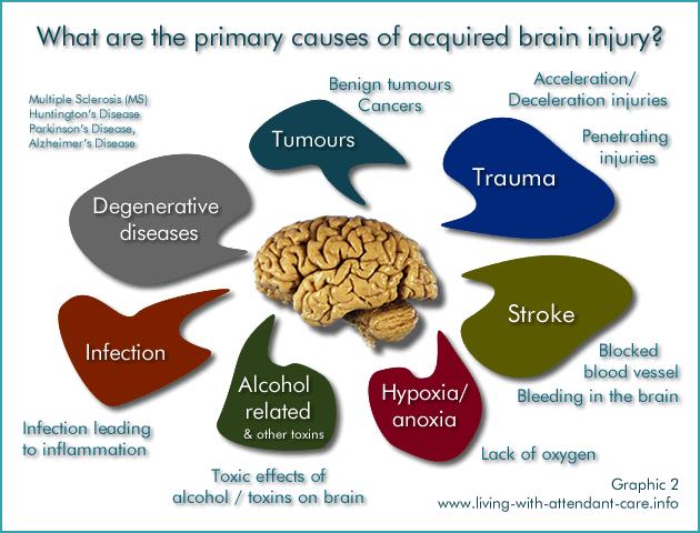 Stimulate right brain activity picture 1